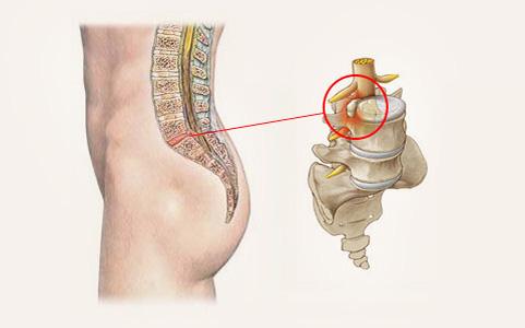 Очаги эндометриоза как лечить